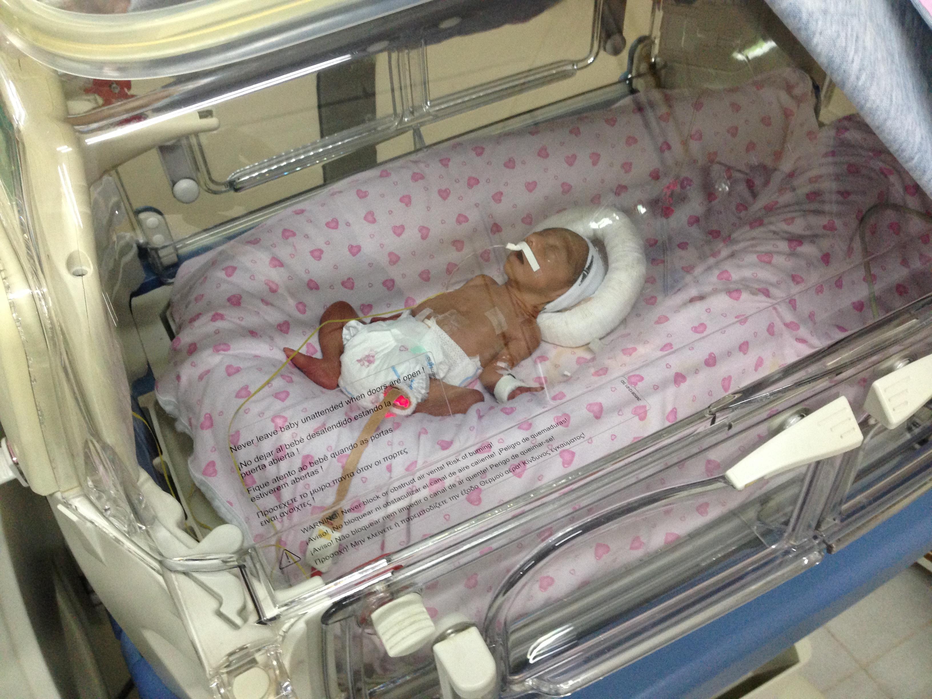 Bebé nacido prematuramente